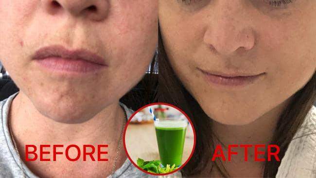 Ngắm kết quả sau khi uống nước ép cần tây của các cô gái trên thế giới: làn da thay đổi nhiều đến mức khó tin - Ảnh 5.