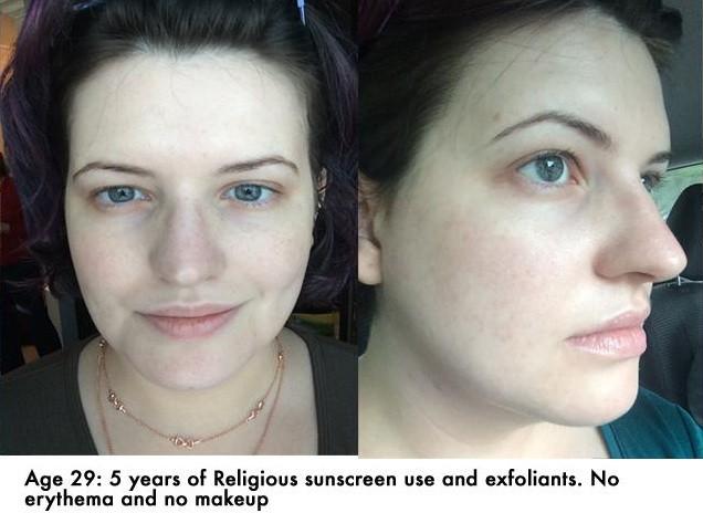 Từ da mẩn đỏ, nhiều mụn, cô nàng này đã thay đổi hoàn toàn sau 5 năm chăm dùng kem chống nắng - Ảnh 3.