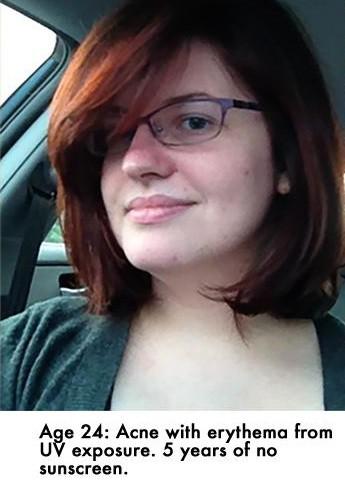 Từ da mẩn đỏ, nhiều mụn, cô nàng này đã thay đổi hoàn toàn sau 5 năm chăm dùng kem chống nắng - Ảnh 2.