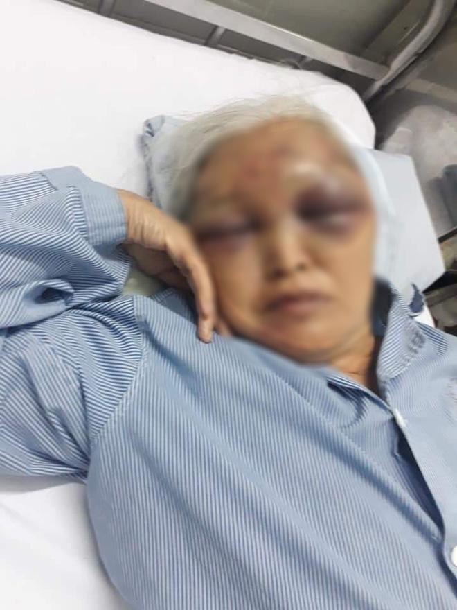 Hà Nội: Đến thăm con vào giữa đêm không được đồng ý, rể cũ ra tay đánh mẹ vợ nhập viện - Ảnh 1.