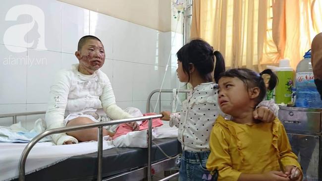 Bố dùng xăng đốt khiến mẹ biến dạng khuôn mặt, con gái 8 tuổi khóc ngất: Mẹ có xấu nhưng con vẫn nhận ra mẹ mà - Ảnh 12.