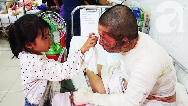 Bố dùng xăng đốt khiến mẹ biến dạng khuôn mặt, con gái 8 tuổi khóc ngất: Mẹ có xấu nhưng con vẫn nhận ra mẹ mà - Ảnh 13.