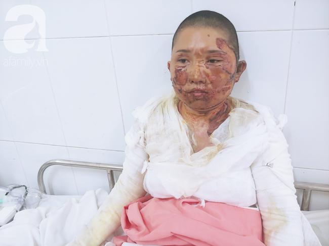 Bố dùng xăng đốt khiến mẹ biến dạng khuôn mặt, con gái 8 tuổi khóc ngất: Mẹ có xấu nhưng con vẫn nhận ra mẹ mà - Ảnh 3.