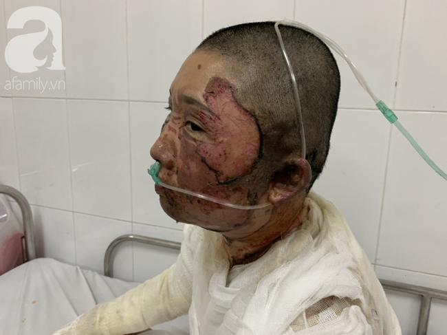 Bố dùng xăng đốt khiến mẹ biến dạng khuôn mặt, con gái 8 tuổi khóc ngất: Mẹ có xấu nhưng con vẫn nhận ra mẹ mà - Ảnh 6.