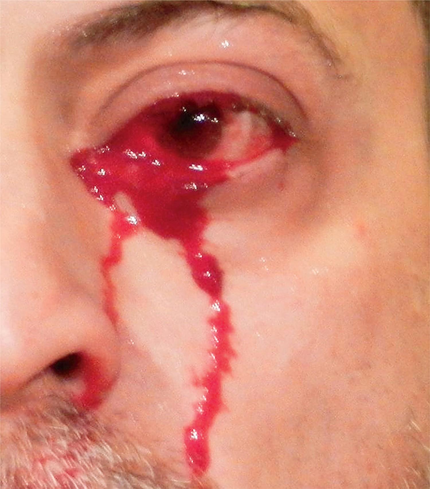 Có 1 hội chứng khiến con người ta khóc ra máu nhưng không phải ai cũng biết tới - Ảnh 1.