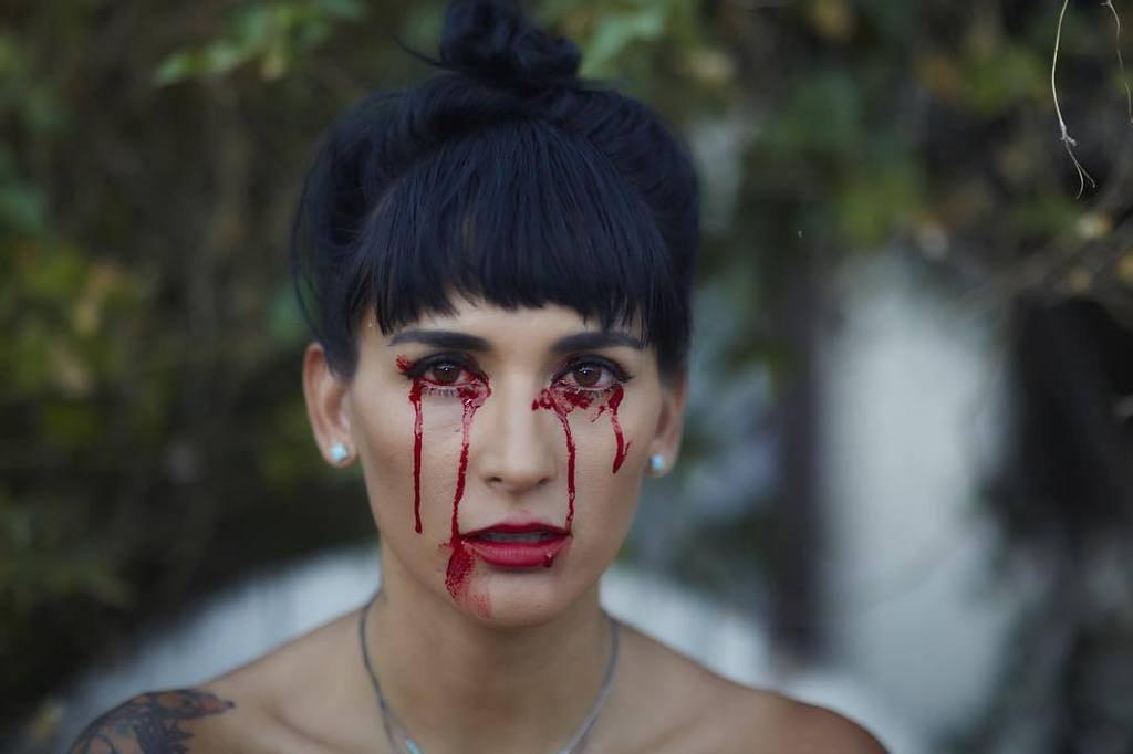 Có 1 hội chứng khiến con người ta khóc ra máu nhưng không phải ai cũng biết tới - Ảnh 4.