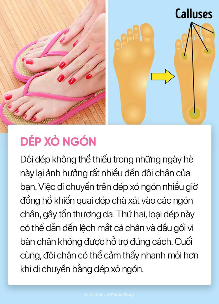 Hóa ra những đôi giày, dép thân quen này lại ảnh hưởng nhiều đến sức khỏe bạn đến vậy - Ảnh 1.