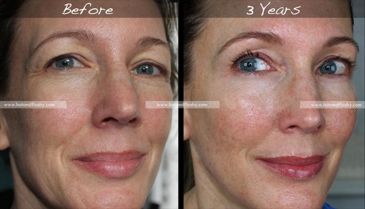 Đắn đo trước hiệu quả chống già của retinol? Minh chứng người phụ nữ sau 3 năm kiên trì với làn da như photoshop sẽ khiến bạn vững tin - Ảnh 1.