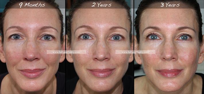 Đắn đo trước hiệu quả chống già của retinol? Minh chứng người phụ nữ sau 3 năm kiên trì với làn da như photoshop sẽ khiến bạn vững tin - Ảnh 2.