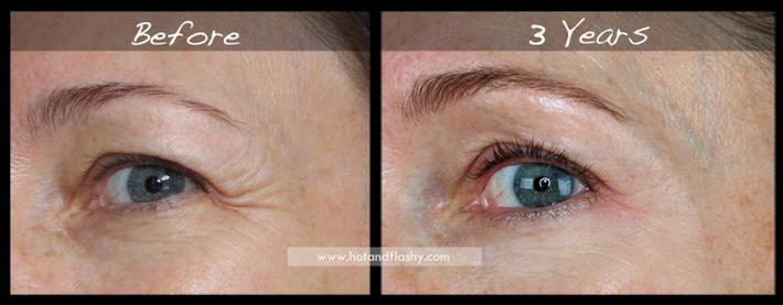 Đắn đo trước hiệu quả chống già của retinol? Minh chứng người phụ nữ sau 3 năm kiên trì với làn da như photoshop sẽ khiến bạn vững tin - Ảnh 4.