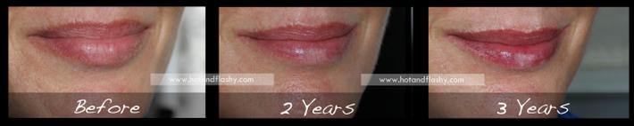 Đắn đo trước hiệu quả chống già của retinol? Minh chứng người phụ nữ sau 3 năm kiên trì với làn da như photoshop sẽ khiến bạn vững tin - Ảnh 5.