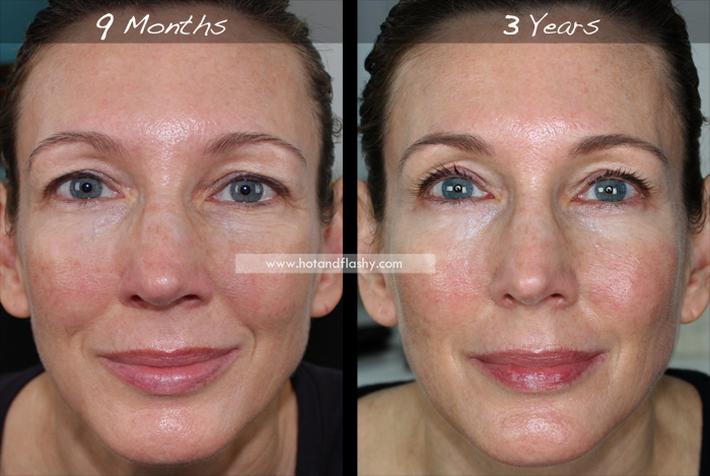 Đắn đo trước hiệu quả chống già của retinol? Minh chứng người phụ nữ sau 3 năm kiên trì với làn da như photoshop sẽ khiến bạn vững tin - Ảnh 6.
