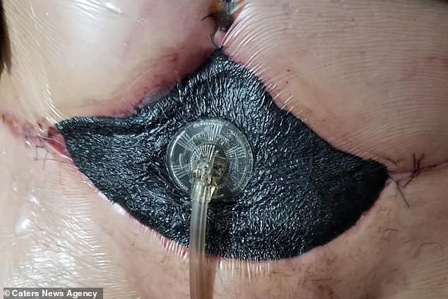 Bỏ ra gần 100 triệu để đi hút mỡ, người phụ nữ gặp biến chứng khiến da bụng bị thối đen - Ảnh 3.