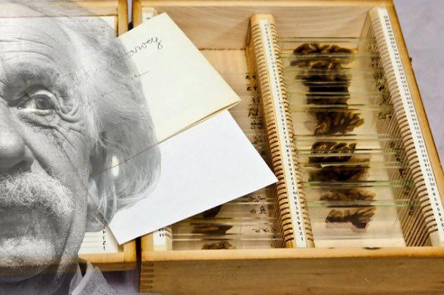 Câu chuyện về những thứ kỳ quái nhất từng được đem ra trưng bày trong bảo tàng: Não, thủ cấp và bộ phận sinh dục con người - Ảnh 2.