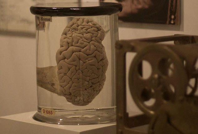 Câu chuyện về những thứ kỳ quái nhất từng được đem ra trưng bày trong bảo tàng: Não, thủ cấp và bộ phận sinh dục con người - Ảnh 4.