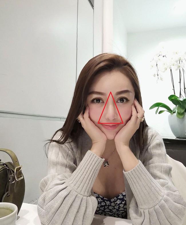Có một vùng tam giác chết trên khuôn mặt mà bạn cần thận trọng khi nặn mụn - Ảnh 1.