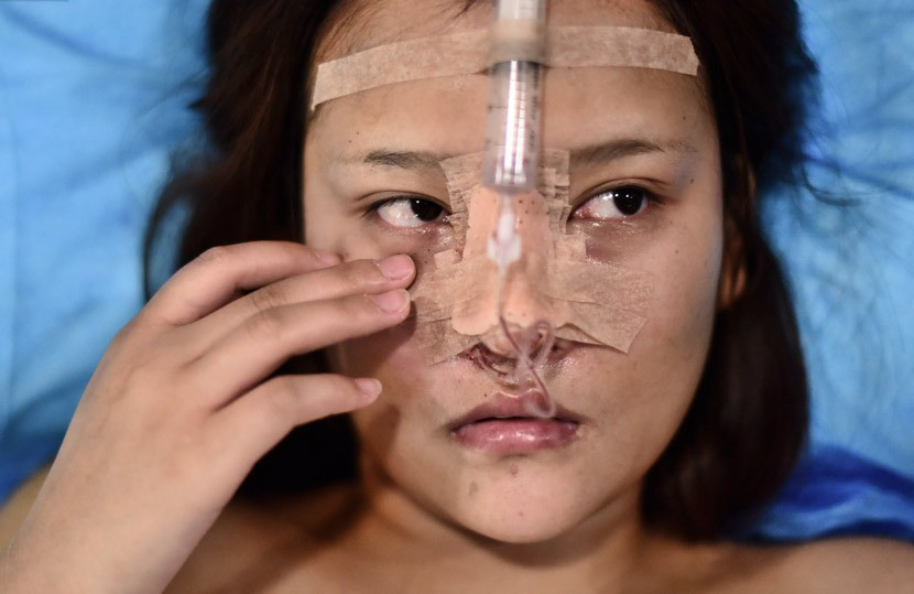 Những cô gái đập mặt xây lại ở Trung Quốc: Đời sang trang nhờ diện mạo mới đến nỗi xem bác sĩ thẩm mỹ là cha mẹ thứ 2 - Ảnh 3.