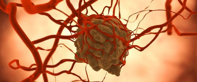 Liệu pháp trao đổi chất: Chúng ta có thể ăn kiêng để bỏ đói tế bào ung thư được hay không? - Ảnh 5.