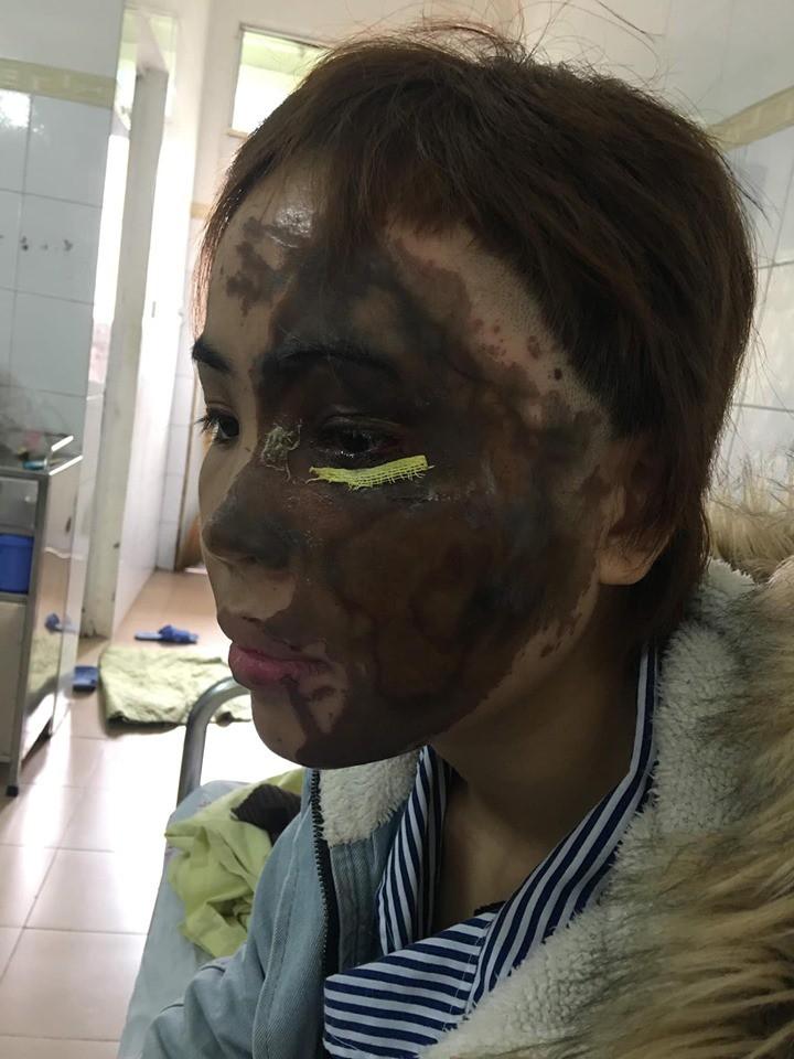 Bắt giam cựu thiếu úy Công an tạt axit khiến vợ sắp cưới bị biến dạng hoàn toàn gương mặt - Ảnh 2.
