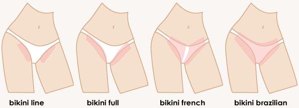 Dọn cỏ đâu nhất thiết phải một màu, còn có nhiều kiểu tạo hình vùng bikini như thế này đây - Ảnh 3.
