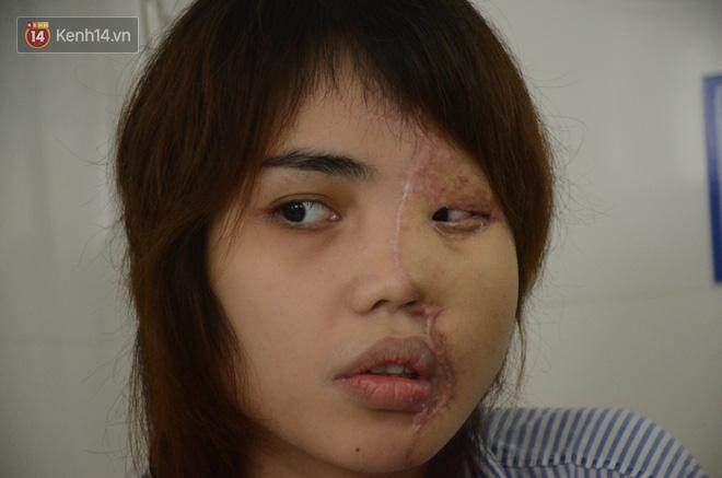 Tạt axit hủy hoại khuôn mặt vợ sắp cưới, cựu thiếu úy công an đối diện mức án cao nhất 10 năm tù - Ảnh 2.