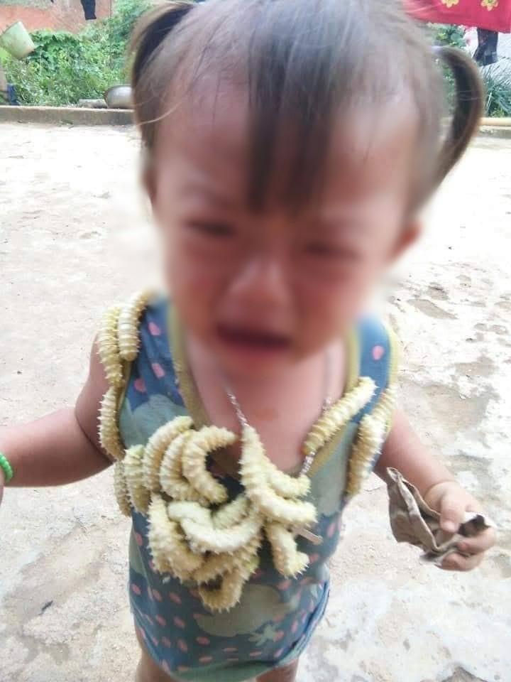 Hình ảnh cô bé khóc thét vì bị trêu thả hàng chục con tằm bò lên người gây tranh cãi: Trò đùa tuổi thơ hay nỗi ám ảnh?