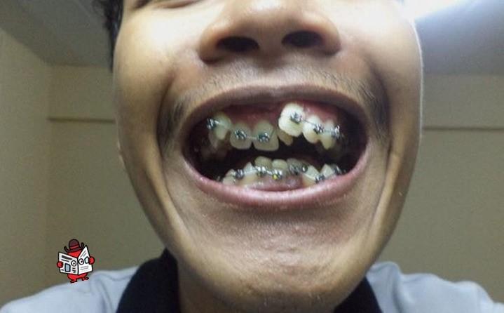 Thêm một ca niềng răng hiệu quả đến kinh ngạc, khiến dân tình càng tin đây là phương pháp bậc thầy trong ngành thẩm mỹ - Ảnh 1.