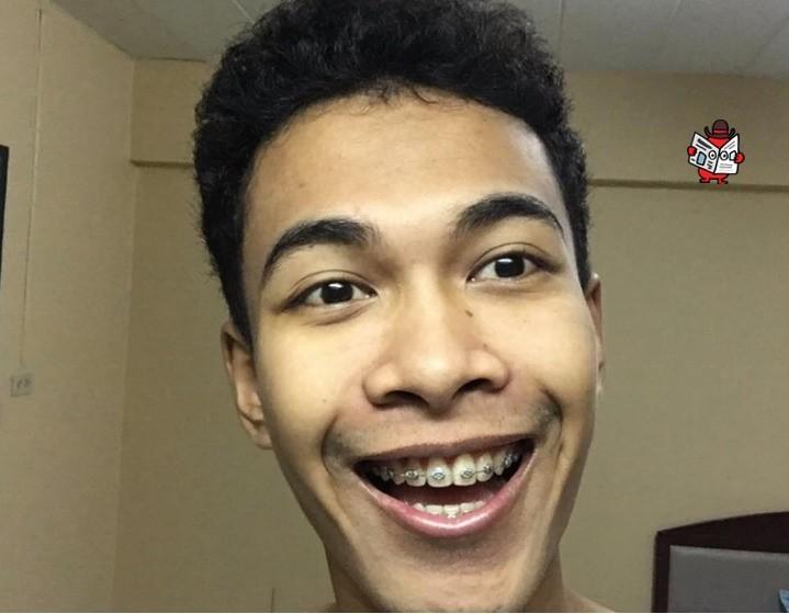 Thêm một ca niềng răng hiệu quả đến kinh ngạc, khiến dân tình càng tin đây là phương pháp bậc thầy trong ngành thẩm mỹ - Ảnh 4.