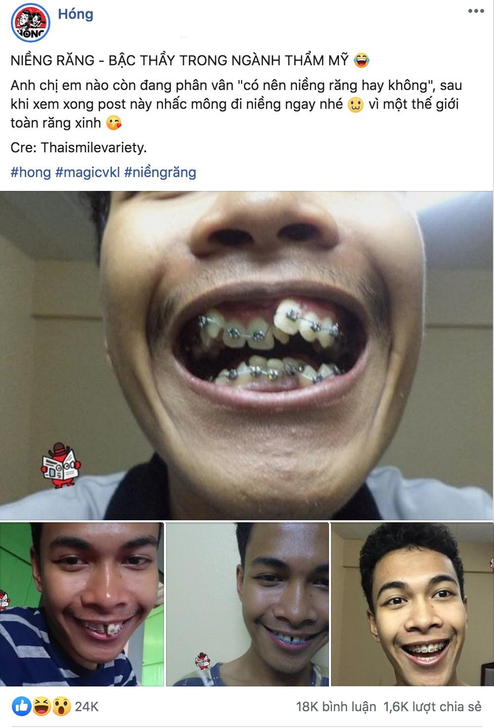 Sau pha niềng răng chấn động MXH, nhiều bạn trẻ không ngại chia sẻ hình ảnh vịt hoá thiên nga với hàm răng của mình - Ảnh 1.