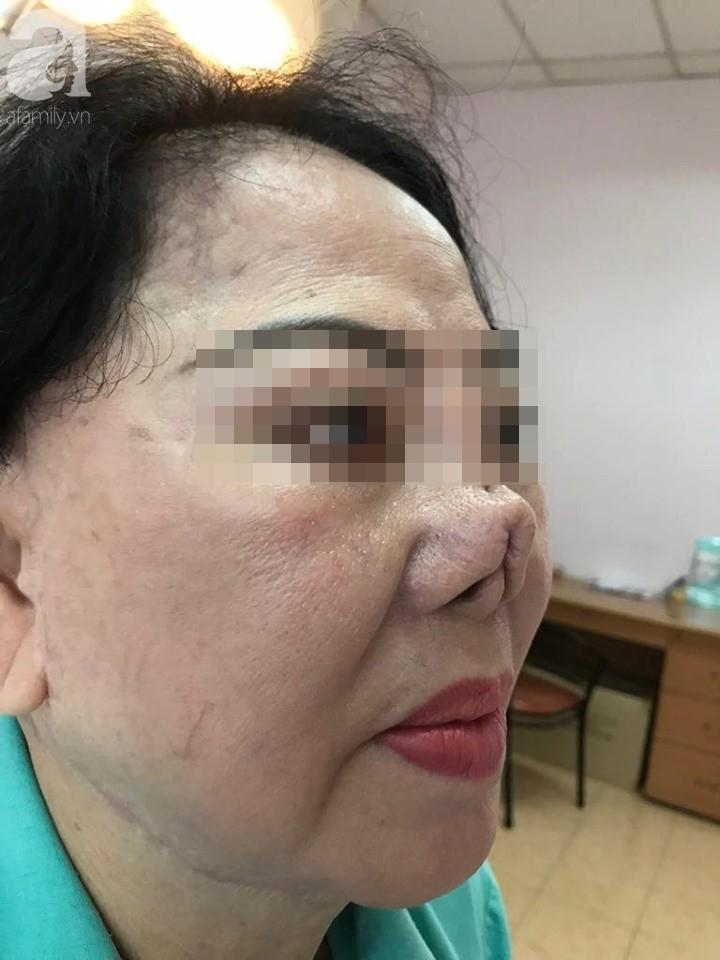 Người phụ nữ 3 năm bị biến dạng mặt vì sửa mũi thất bại: Ra đường ai cũng gọi tôi là quỷ dạ xoa - Ảnh 1.