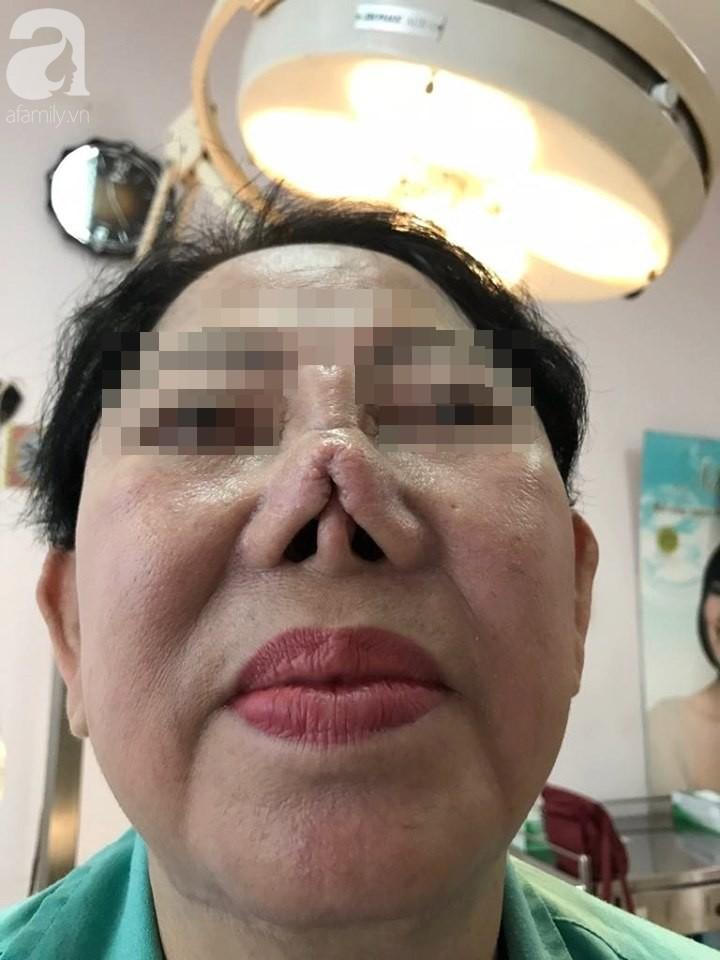 Người phụ nữ 3 năm bị biến dạng mặt vì sửa mũi thất bại: Ra đường ai cũng gọi tôi là quỷ dạ xoa - Ảnh 2.