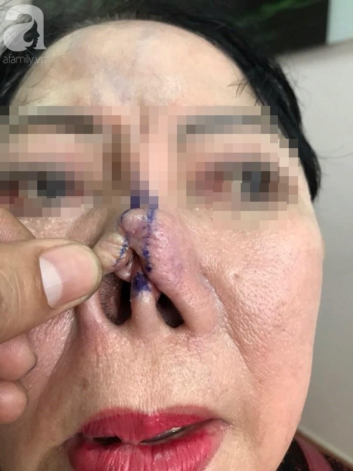 Người phụ nữ 3 năm bị biến dạng mặt vì sửa mũi thất bại: Ra đường ai cũng gọi tôi là quỷ dạ xoa - Ảnh 3.