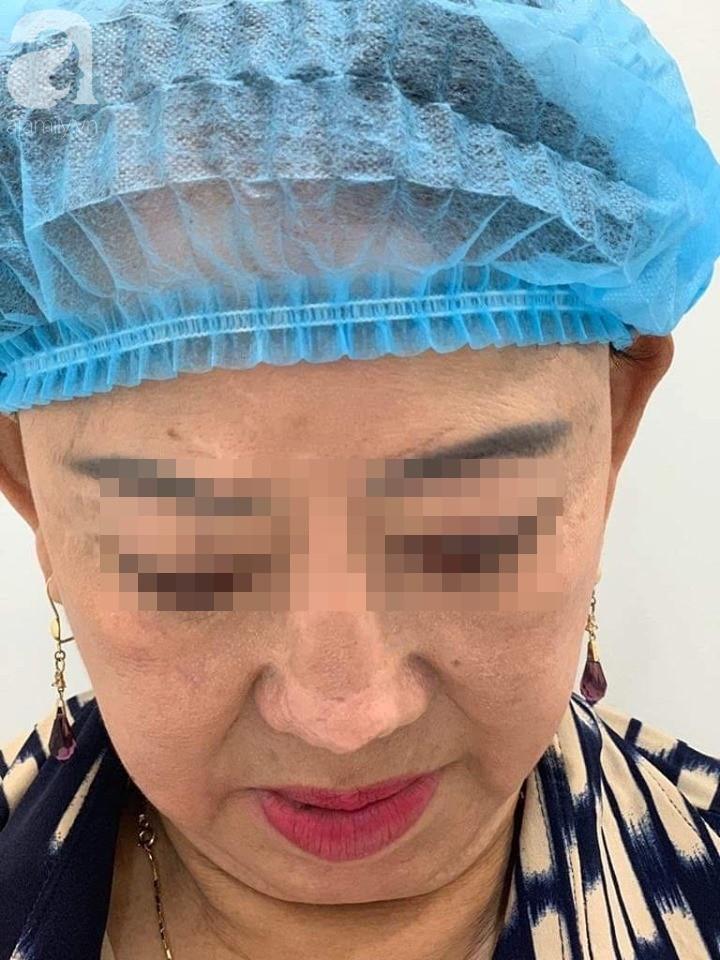Người phụ nữ 3 năm bị biến dạng mặt vì sửa mũi thất bại: Ra đường ai cũng gọi tôi là quỷ dạ xoa - Ảnh 4.
