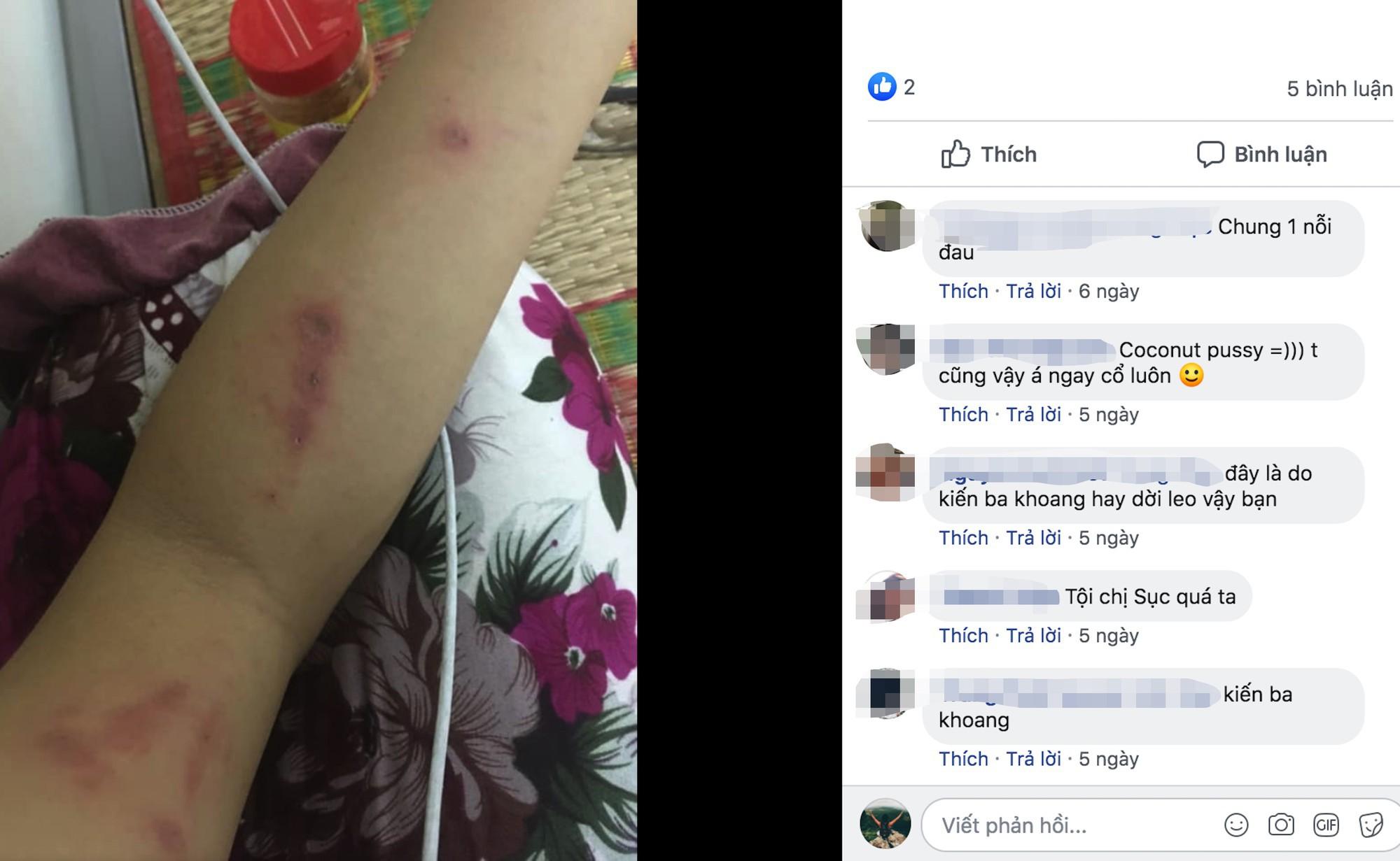 Kiến ba khoang tái xuất, sinh viên KTX Đại học Quốc gia khốn khổ vì bị tấn công - Ảnh 4.