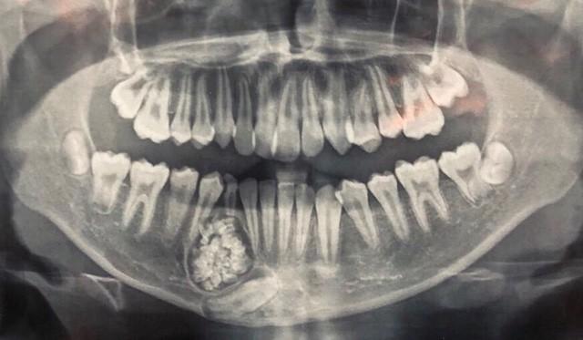 Ngỡ ngàng: Lấy gần 100 cái răng trong miệng thiếu niên 13 tuổi - Ảnh 1.