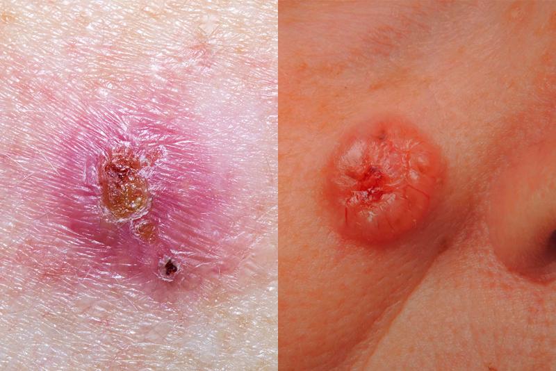 Bác sĩ da liễu Mỹ chỉ ra cách phân biệt 5 loại ung thư da phổ biến để kịp thời phòng tránh từ sớm - Ảnh 1.