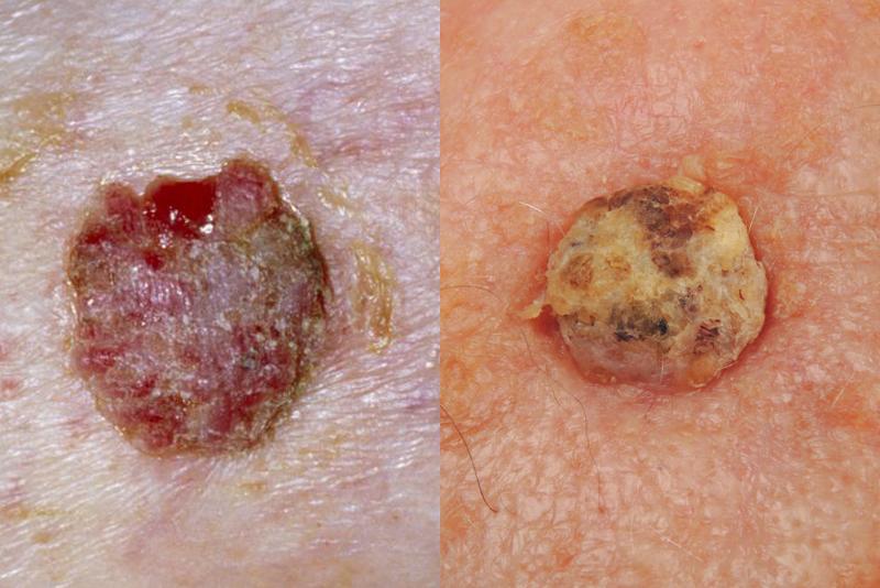 Bác sĩ da liễu Mỹ chỉ ra cách phân biệt 5 loại ung thư da phổ biến để kịp thời phòng tránh từ sớm - Ảnh 2.