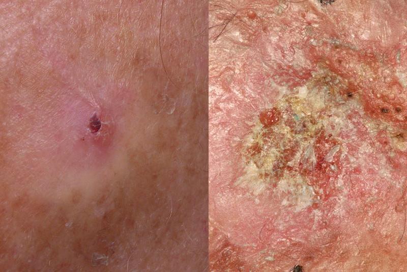 Bác sĩ da liễu Mỹ chỉ ra cách phân biệt 5 loại ung thư da phổ biến để kịp thời phòng tránh từ sớm - Ảnh 4.