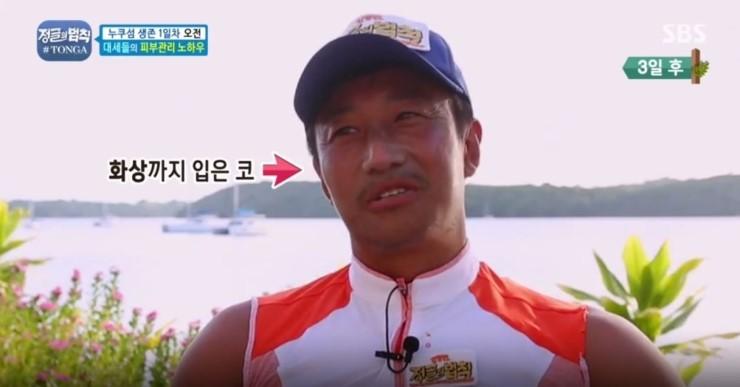 """""""Kem chống nắng chưa bao giờ có trong từ điển của tôi"""", ba ngày sau nam diễn viên Hàn lãnh hậu quả khiến netizen cười bò - Ảnh 3."""