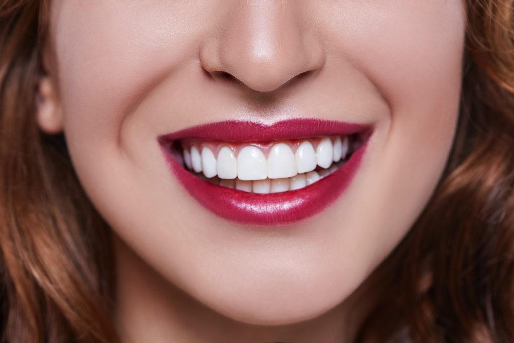 Những điều tưởng thế mà không phải thế về công nghệ răng sứ đang được giới trẻ lẫn các sao ưa chuộng - Ảnh 2.