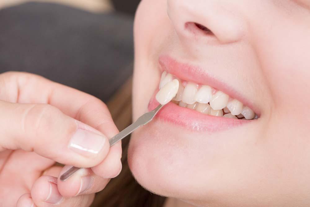 Những điều tưởng thế mà không phải thế về công nghệ răng sứ đang được giới trẻ lẫn các sao ưa chuộng - Ảnh 3.