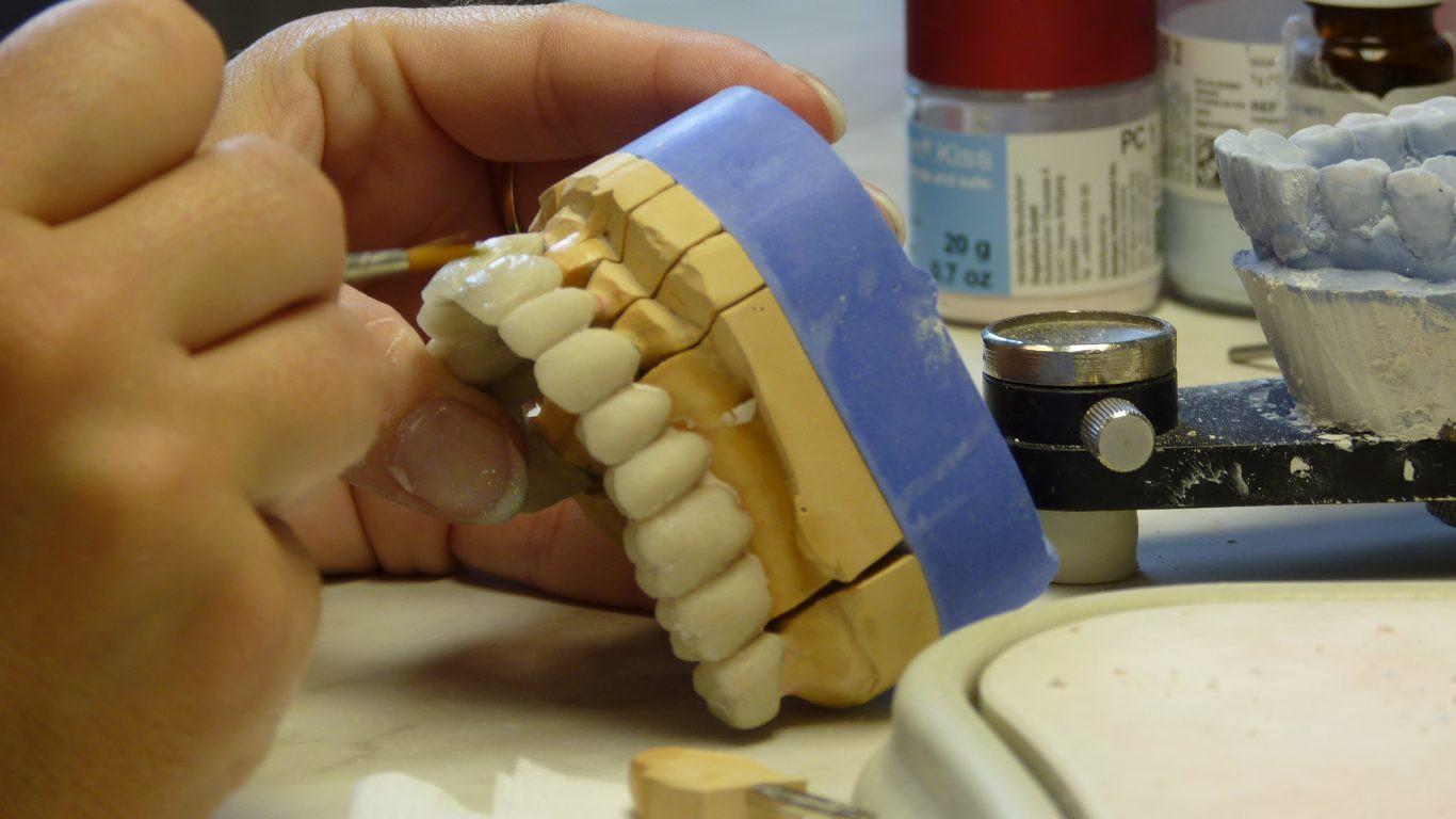 Cái giá của sự đẹp: Cận cảnh quy trình bọc răng sứ khiến người xem cũng phải thót tim - Ảnh 8.