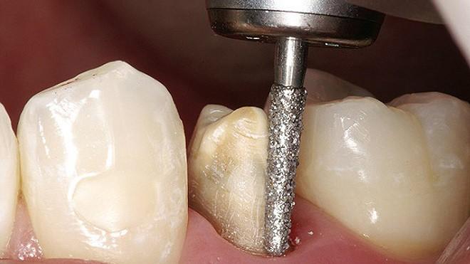 Cái giá của sự đẹp: Cận cảnh quy trình bọc răng sứ khiến người xem cũng phải thót tim - Ảnh 2.