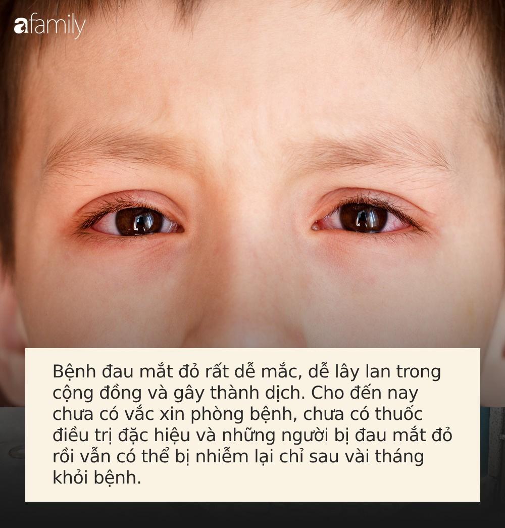 Đau mắt đỏ có thể bùng phát trong mùa hè, muốn phòng bệnh hãy làm đủ 5 việc này mỗi ngày - Ảnh 1.