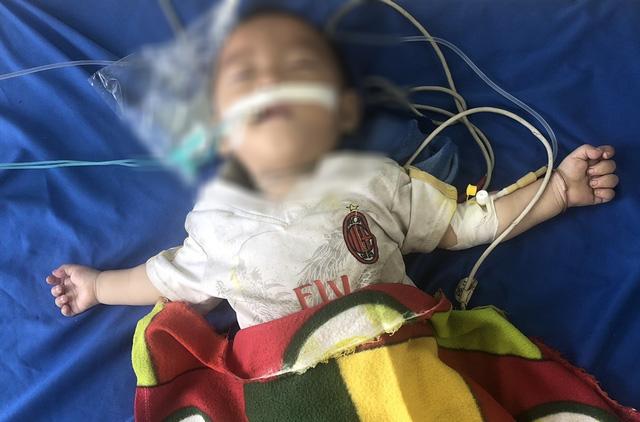 Ngỡ ngàng: Bé trai 12 tháng tuổi suy hô hấp nguy kịch do ngộ độc... thuốc phiện - Ảnh 2.