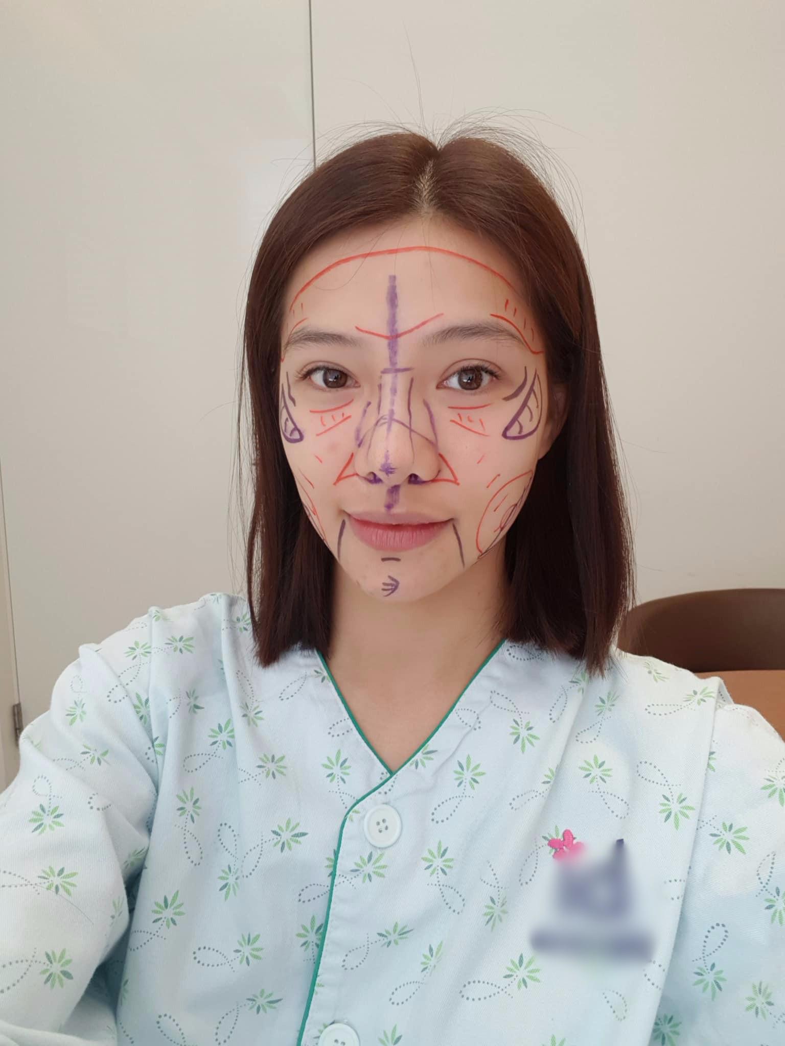"""VZN News: Lưu Đê Ly khoe trải qua 6 ca phẫu thuật ở Hàn để """"đập mặt làm lại"""", đẹp hay không chưa bàn chỉ biết là quá dũng cảm rồi! - Ảnh 2."""