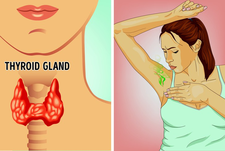 VZN News: Mùi cơ thể gây ám ảnh nhưng ít ai biết nguyên nhân có thể xuất phát từ những vấn đề sau - Ảnh 3.