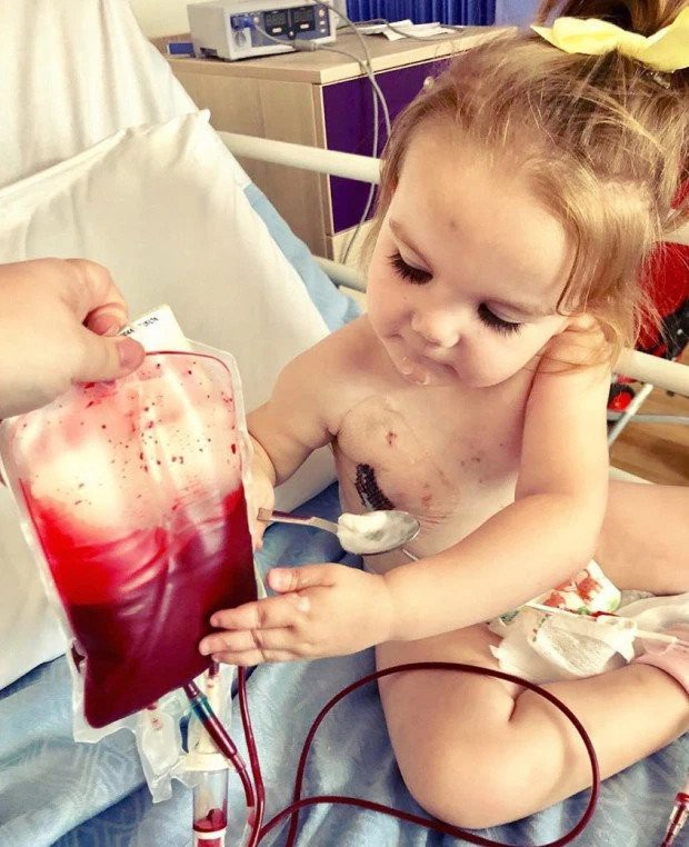 Mắc căn bệnh bí ẩn, bé gái đáng thương không thể sống nếu không được truyền máu của người khác - Ảnh 2.
