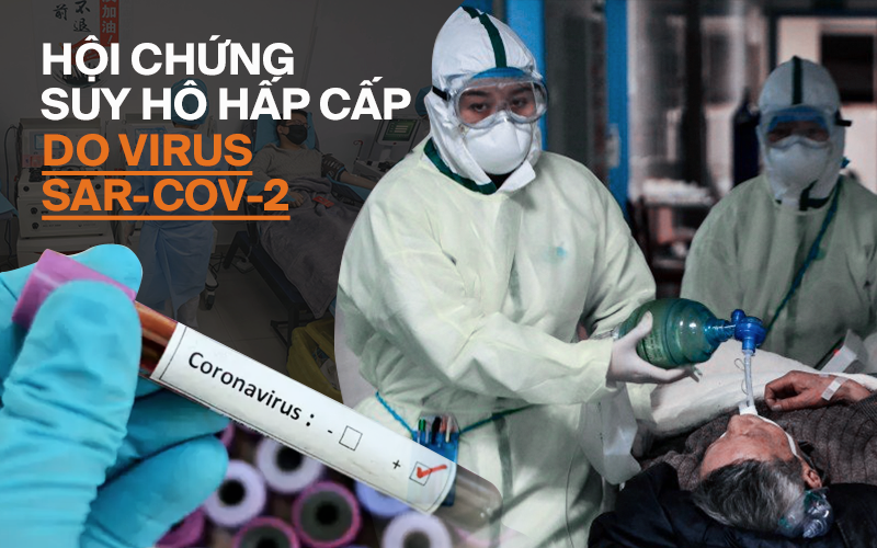 Tại sao Hội chứng Suy hô hấp cấp do virus SAR-CoV-2 là nguyên nhân chính gây tử vong?