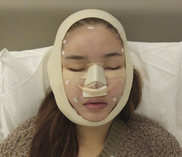 Mỹ nhân Vbiz khiến netizen hoảng hốt vì mặt sưng phồng: Lâm Anh thành bản sao Park Bom, Hiền Hồ bị nghi dao kéo - ảnh 21